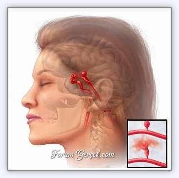 Hipotiroidi hipertansiyon